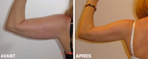 Prix lifting bras tunisie