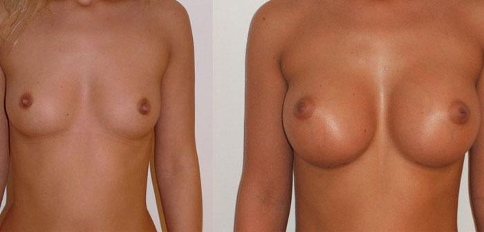 Prix augmentation mammaire tunisie