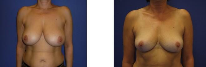 tarifs reduction mammaire tunisie