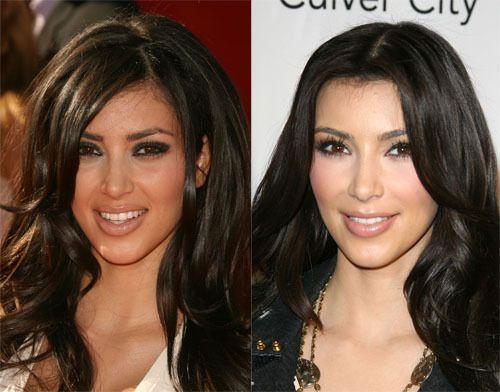 Kim kardashian avant et après la chirurgie esthétique