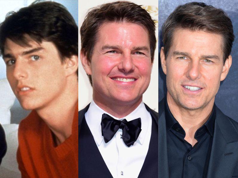 Tom-Cruise -avant-et-après-chirurgie-esthétique