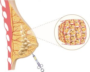 lipofilling-injection-graisse