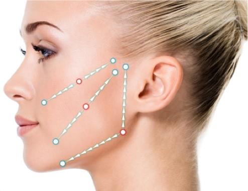 Les fils tenseurs : une alternative aux injections de Botox