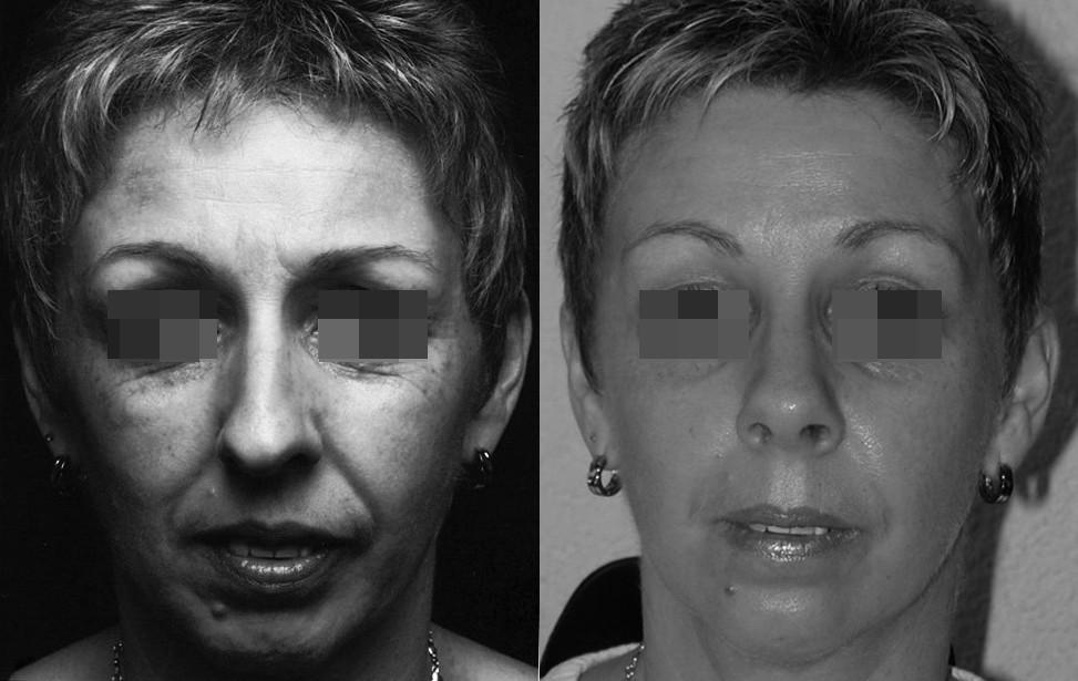 rhinoplastie fonctionnelle tunisie
