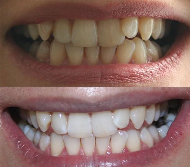 resultat-blanchiment-dents-tunisie