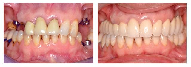 resultat-implant-dentaire-tunisie