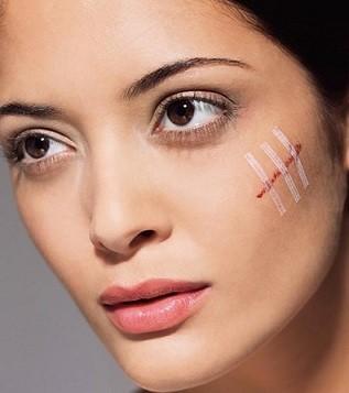 traitement cicatrices tunisie : élimination des cicatrices et de leurs séquelles