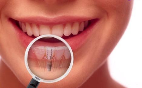 Implants dentaires : un marché extrêmement juteux en Europe !
