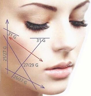 lifting-visage-sans-chirurgie-tunisie