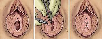 hymenoplastie-tunisie