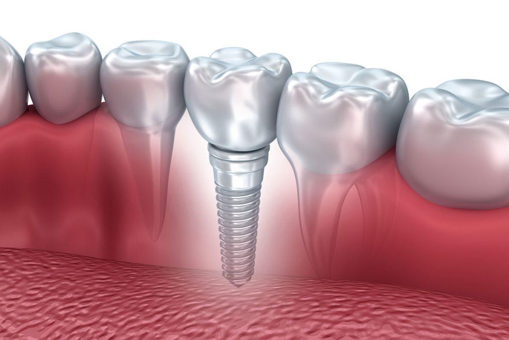 implants-dentaires-tunisie