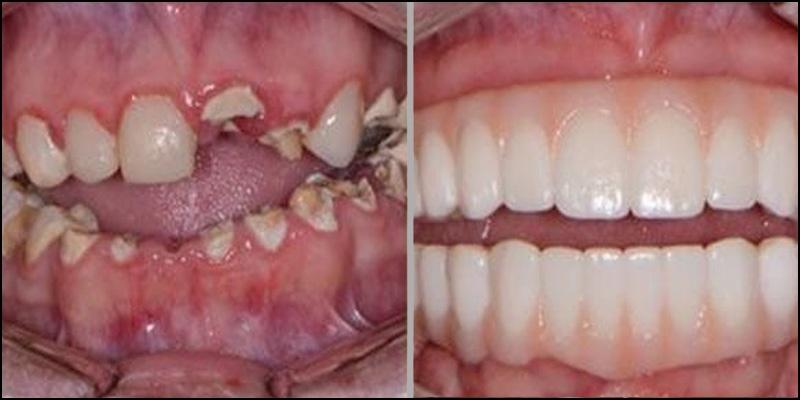 reconstruction dentaire complete