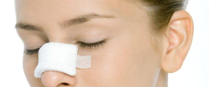 effondrement valve nasale